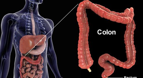 The spiritual Reasons behind Colon and Rectal Cancer