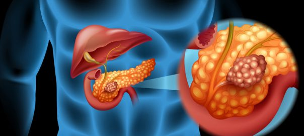 The spiritual Reasons behind Liver,Bladder & Pancreas Cancer